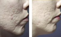 Acne Scar Removal with Microdermabrasion