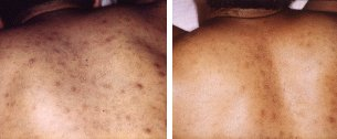 Chicken Pox Scar Removal with Microdermabrasion