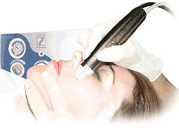 microdermabrasion how it works